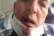 """VIDEO. Victima primarului din Vișina Nouă: """"Abia mănânc, abia vorbesc!"""""""